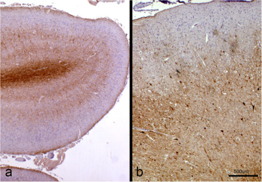 Immunohistochemistry for neurofilaments. Sections of the cerebral cortex from a control (a) and a lissencephalic (b) brain, taken at the same magnification and immunolabelled for neurofilaments. In the control brain, the typical layering of this area (I to VI) can be seen, where the neurons from the pyramidal layers show the strongest signal. In the lissencephalic brain, three different layers can be identified according to neurofilament expression. Immunoperoxidase staining for neurofilaments.