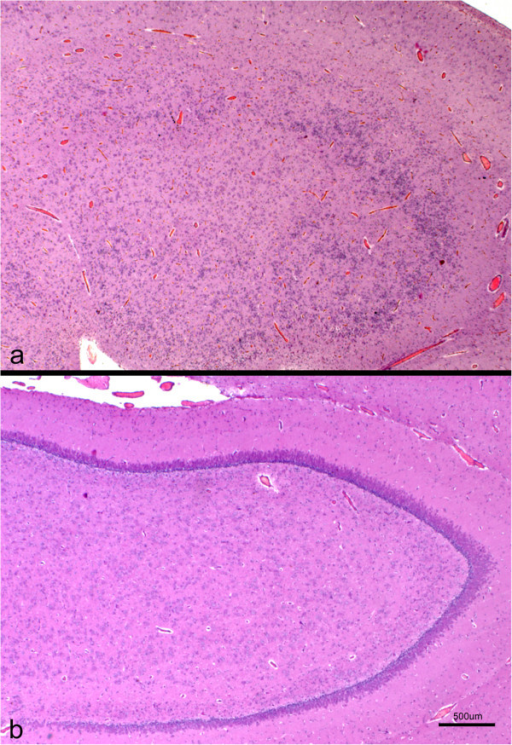 Cross section of the hippocampus from a lissencephalic (a) and control (b) brain. Both sections were taken at the same magnification. Whereas in the control brain there is an evident and organized layer of pyramidal neurons, this region shows a marked cellular disorganization in the lissencephalic brain, with several layers of neuronal and glial cells interspersed. H-E.