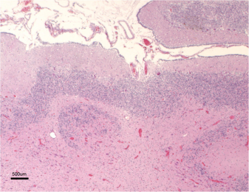 Marked cerebellar hypoplasia. The cerebellum shows a reduced number of very short folia. Note that the typical layering of the cortex can be identified. H-E.