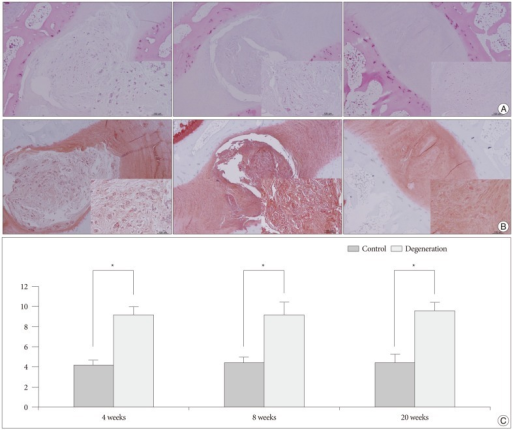 Histologic analyses of the rabbit discs. 40× and 200× (inner rectangle) power images. A : Normal non-punctured disc shows a clear boundary between the NP and AP with a normal pattern of fibrocartilage lamellas in AF. The NP cells are numerous large, vacuolated notochordal cells (left). In moderate degenerated disc, the border between the NP and AF is less distinct than in the normal disc. The notochordal cells are decreased in number and replaced with chondrocyte-like cells (middle). In a severely degenerated disc, the NP tissue is lost and replaced with fibrocartilage lamellas of the AF with abundant associated fibroblasts (right). B : Serial sections of the discs stained with Safranin O. C : Significantly higher grades are noted in the degenerated discs when compared with the controls (*p<0.01). NP : nucleus pulposus, AF : annulus fibrosus.