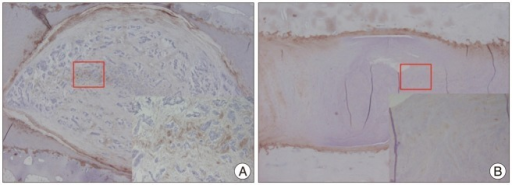 Immunohistochemical staining of the rabbit discs. 40× and 200× (inner rectangle) power images. Expression of type II collagen is prominent in the ECM and pericellular region of the NP within the control disc. B : The expression is scanty in the degenerated disc. NP : nucleus pulposus.