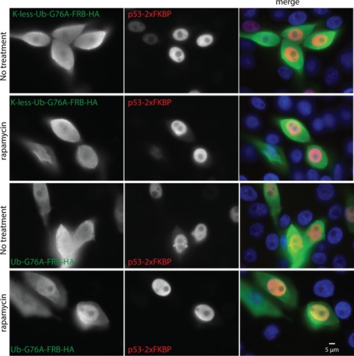 Effect of rapamycin-induced attachment of ubiquitin to p53 on its intracellular localization. Saos-2 cells were transfected with the indicated DNA constructs (p53-2xFKBP along with K-less-Ub(G76A)-FRB-HA or Ub(G76A)-FRB-HA). Cells were untreated or treated with rapamycin (0.1 μM) 6 h after transfection and fixed 24 h after transfection. Cells were stained with rabbit anti-HA and mouse anti-p53 (DO-1) antibodies. Goat anti-rabbit immunoglobulin G (IgG)–fluorescein and goat anti-mouse IgG-rhodamine conjugates were used as the secondary antibodies. The nuclei were stained with 4′,6-diamidino-2-phenylindole.