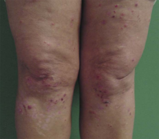 Dermatitis herpetiformis: erythematous plaques, grouped vesicles, exulcerationsand blood crust in lower limbs