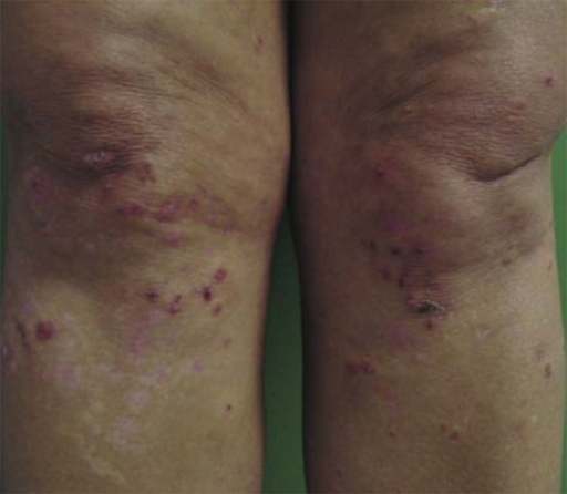 Dermatitis herpetiformis. Vesicles dissected with crusts and residualhypopigmented macules on the knees
