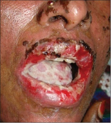 Multiple oral ulcers present on the tongue