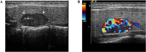 Color Doppler ultrasound demonstrating (A) non-uniform hypoechoic signals and an indication of calcified spots (white arrows). (B) Color Doppler flow imaging indicted increased blood flow signals.