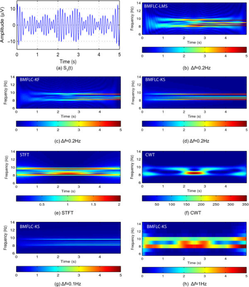 Time-frequency mappings of various methods for synthetic signal S3(t).(a) Synthetic signal S3(t); (b) Time-frequency mapping of BMFLC-LMS with frequency spacing Δf=0.2 Hz; (c) Time-frequency mapping of BMFLC-KF with frequency spacing Δf=0.2 Hz; (d) Time-frequency mapping of BMFLC-KS with frequency spacing Δf=0.2 Hz; (e) Time-frequency mapping of STFT; (f) Time-frequency mapping of CWT; (g) Time-frequency mapping of BMFLC-KS with frequency spacing Δf=0.1 Hz; (h) Time-frequency mapping of BMFLC-KS with frequency spacing Δf=1 Hz.