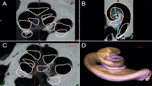 A–C: Cross-sectional view of two cochleae in coronal (A), sagittal (C), and cochlear views (B). D: Three-dimensional surface reconstruction of the scala tympani with the largest (beige, TB11), and smallest (pink, TB06) cross-sectional diameter observed in 16 temporal bones (see Fig. 8). The large dimensional variability between the largest and smallest scala tympani is clearly visible. CA, cochlear axis; RW, round window. Scale bar = 1 mm.
