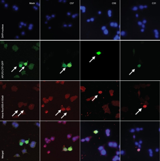 Effects of transfection with APLP2-CTFs (C57, C50, C31) on S100A9 protein expression in BV2 cells (immunocytochemical staining; laser scanning confocal microscope, × 100).S100A9-positive cells (arrows) were visualized with Alexa Flour 555-conjugated secondary antibody (red). Nuclei were stained with DAPI (blue). Among successfully transfected cells (green), S100A9 protein expression was notably stronger in all three APLP2-CTF-transfected groups than in the mock transfected group.