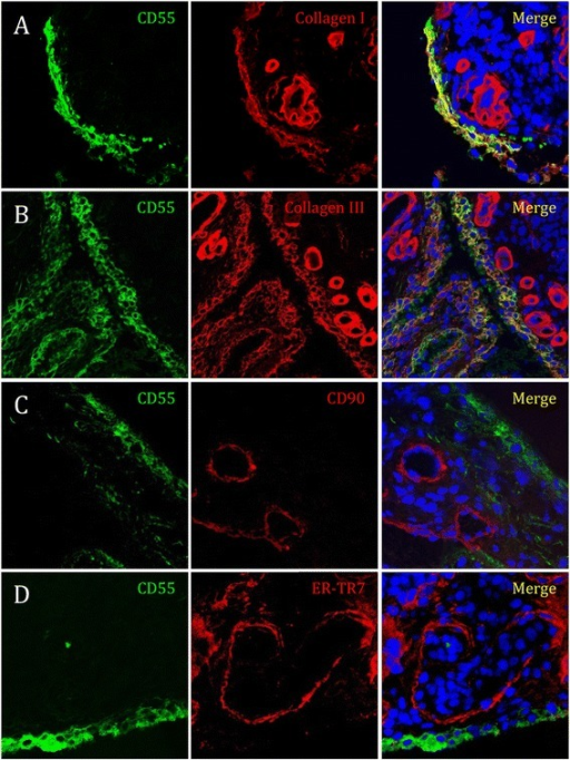 CD55 colocalizes with collagen I and collagen III, but not with ER-TR7 or CD90 in rheumatoid arthritis (RA) synovial tissue. Sections of RA synovial tissue were costained for CD55 (green) and (A) collagen I, (B) collagen III (C) CD90, or (D) ER-TR7 (all red, overlay yellow) and analyzed by confocal microscopy. Shown are representative stainings, magnification 63 x.