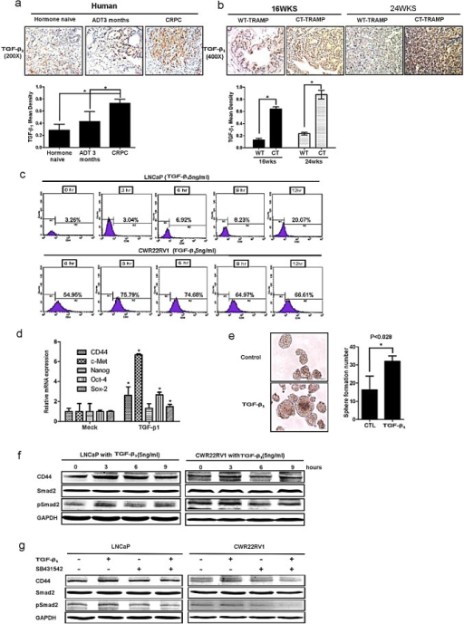 TGFβ1 can activate the dedifferentiation of PCa cells, leading to increased CD44+ S/P cell population(a) TGFβ1 was detected by IHC in human PCa samples before ADT, after ADT for 3 month, and of CRPC specimens. TGFβ1 expression was increased after ADT therapy. (b) TGFβ1 and phospho-Smad2/3 expression were increased in 16wks and 24wks castrated TRAMP prostate tumors comparing to wt TRAMP tumors. (c) TGFβ1 could expanse CD44+ cell population in vitro. LNCaP cells and CWR22rv1 cells were treated by 5ng/ml TGFβ1 for 3, 6, 9, and 12hrs. The CD44+ cell population was separated by flow cytometry. (d) 5ng/ml TGFβ1 increased the expression of cancer stem-like cell markers, including CD44, Oct-4, c-met, nanog and sox2 in LNCaP cells by real-time PCR assay. Data are in triplicate from three independent experiments and were normalized to GAPDH. All data are expressed as mean±S.D. (e) 5ng/ml TGFβ1 could also induce more sphere formation the character of S/P cells, compared to non-treatment LNCaP cells. Quantitation of the numbers of spheres (diameter>40μm) are presented as the mean SD (Scale bar, 100μm). (f) 5ng/ml TGFβ1 could up-regulate the expression of CD44 in LNCaP and CWR22RV1 cells via Western blot assay.(g) Importantly, We also applied interruption approach via using SB431542 to block TGFβ1 signaling and found CD44 expression decreased in Western blot assay. Significance was defined as p<0.05(*).