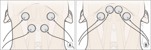 The electrode positions relative to hyoid bone and thyroid cartilage. (A) Electrodes placement in both submental and throat regions. The top pair was placed horizontally in the submental region over the region of the mylohyoid muscle above the hyoid bone. The bottom pair was placed on the skin over the thyroid cartilage on either side of the midline over the region of the thyrohyoid muscle medial to the sternocleidomastoid muscle. (B) Electrodes in submental placement alone. Both pairs of horizontally arranged electrode were placed in the skin overlying the submental region.