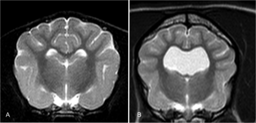 Comparison of a canine brain with normal lateral cerebral ventricles (A) and enlarged ventricles (B).