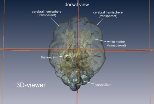 Volume rendering of brain tissues of interest.3D viewer mode of the graphical software AMIRA. The voxels of the tissue of interest (white matter/grey matter) of each slice have been assembled and are now displayed as a 3D model. Each tissue can be displayed solid or transparent. The localizer lines support the segmentation process. As they are displayed in both the 2D images and the 3D model, the thalamus, medulla and cerebellum can be accurately separated from the volume of interest.