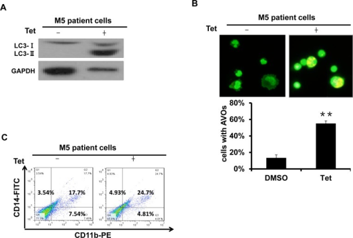 Tetrandrine induced autophagy and differentiation in M5 type patient primary leukemia cellsM5 leukemia is one subtype of acute myeloid leukemia (AML). (A) Western blot analysis of LC3 protein levels. M5 type patient cells were treated with 2 μM tetrandrine (Tet) for 24 hours. (B) Acridine orange staining assay analysis of autophagy in M5 type patient cells. Cells were treated with 2 μM tetrandrine (Tet) for 24 hours. Error bars represent the mean ±SD. **p <0.01. (C) Flow cytometry analysis of CD11b and CD14 expression. M5 type patient cells were treated with 2 μM tetrandrine (Tet) for 4 days.