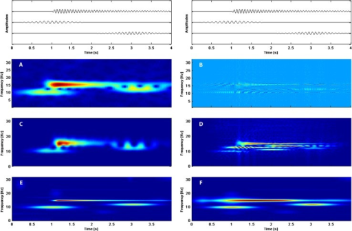 Time-frequency distributions obtained by: A—windowed Fourier transform (spectrogram), B—Rihaczek transform, C—Morlet wavelets, D—Wigner de Ville transform, E—MP with the enriched dictionary, F—MP with the Gabor dictionary.Components of simulated signal consisting of asymmetric waveform of frequency 15 Hz and two spindles of frequencies 12 Hz and 10 Hz are shown at the very top of the picture. On the horizontal axis time, on the vertical axis frequency in Hz. The colors represent: for four upper panels energy and for two lowest panels amplitude (red the strongest, dark blue the weakest).