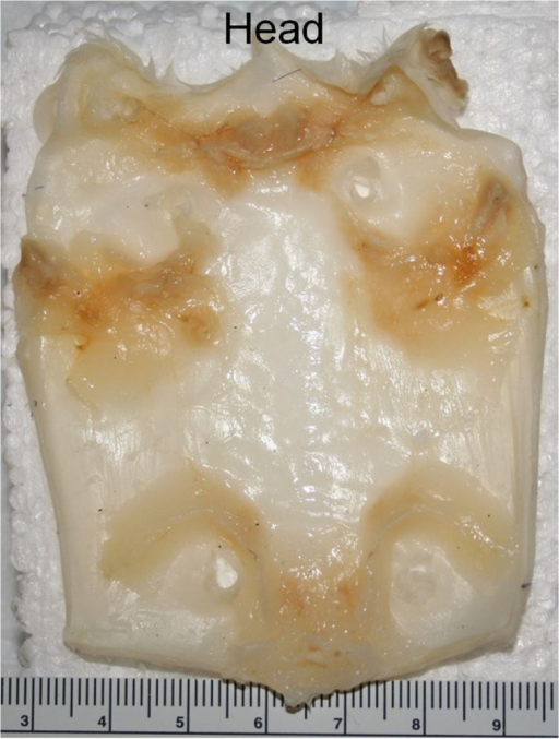 Photograph of excised skin from a mouse after treatment with formaldehyde before preparation for ex vivo imaging.The scale of the ruler is in millimeters.