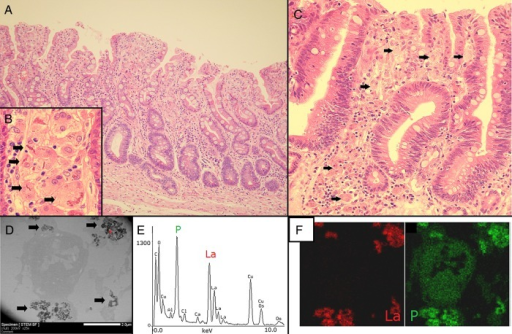 Light micrograph and transmission electron microscope–energy-dispersive X-ray spectroscopy (TEM-EDS) results of the gastric mucosa. (A) Gastric mucosa of non-neoplastic area showing accumulation of macrophages in the lamina propria. The foveolar epithelium is fully replaced with intestinal metaplasia and pyloric glands are atrophic. (B) High-power magnification of (A), showing macrophages with abundant granular cytoplasm with some eosinophilic materials (indicated by arrows). (C) Macrophages in the neoplastic area (indicated by arrows). (D) TEM bright-field image of a macrophage showing deposits around the nucleus (indicated by arrows). (E) EDS spectrum showing the presence of lanthanum (La) and phosphorus (P) in the area analyzed (indicated by the '+' in D). (F) Deposits indicated by the '+' in (D) correspond to La and P.