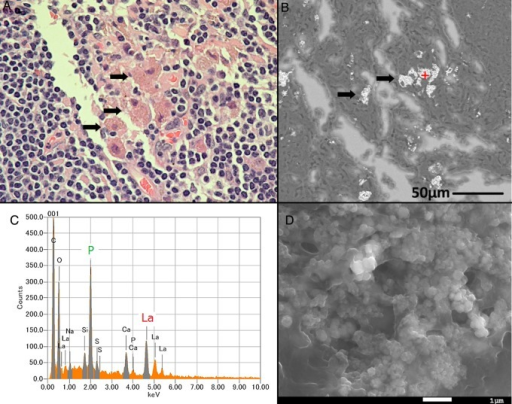 Light micrograph and SEM-EDS results of a regional lymph node. (A) Macrophages with granular cytoplasm in the lymph node (indicated by arrows). (B) SEM image of the lymph node showing bright elements (indicated by arrows). (C) EDS spectrum showing the presence of La and P at the area analyzed (indicated by the '+' in B). (D) Magnified image of the analysis point showing granular substances.