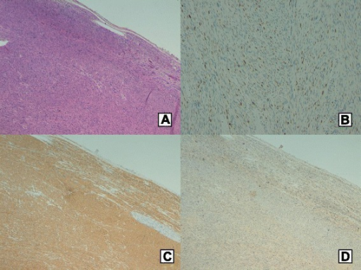 Histology and immunohistochemical analysis. Haematoxylin-eosin stain (original magnification ×50) (a). Mib1 (proliferative index) (b). Strong immunoreactivity to smooth muscle actin (c). No immunoreactivity to CD117 (c-kit) (d)