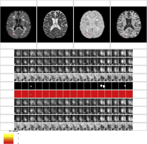 Some redeeming features: rating of 2 for the score on the first PC. This scan received a rating of 2 for the score on the first PC from both raters. Both raters also gave a rating of 2 for the lesion segmentation. The neuroradiologist commented that this scan received a low rating because it was not clear that the segmented portion for time point 3 was lesion.