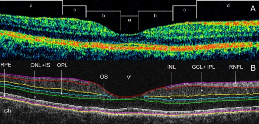 Macular image segmentation results using OCTRIMA.(A) The image of a healthy macula scanned by Stratus OCT with the division of the macular regions used for the analysis (foveolar region (a) with a diameter of 0.375 mm, foveal region (b) with a diameter of 1.85 mm; parafoveal region (c) with a diameter of 2.85 mm and perifoveal region (d) with a diameter of 5.85 mm) (B) The same OCT scan processed with OCTRIMA. Abbreviations: Ch, choroid; GCL+IPL, ganglion cell layer and inner plexiform layer complex; INL, inner nuclear layer; ONL+IS, combined outer nuclear layer and inner segment of photoreceptors; OS, outer segment of photoreceptors; OPL, outer plexiform layer; RNFL, retinal nerve fiber layer; RPE, retinal pigment epithelial layer; V, vitreous.