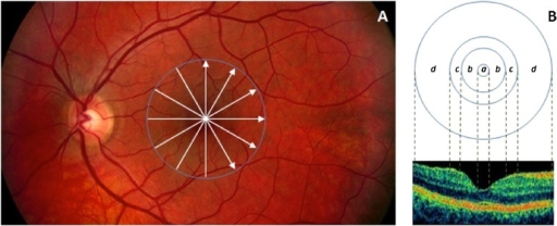 Retinal scanning and macular regions used in the study.(A) The fundus image of a healthy eye. The white arrows in the macula show the locations of the OCT scans made. (B) The distribution of macular regions: foveolar region (a) with the diameter of 0.375 mm, foveal region (b) with a diameter of 1.85 mm; parafoveal region (c) with a diameter of 2.85 mm and perifoveal region (d) with a diameter of 5.85 mm.