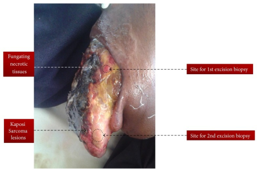 Enlarged and fungating tongue completely occluding oral cavity as a result of infiltrating Kaposi Sarcoma in HIV positive Maasai female.
