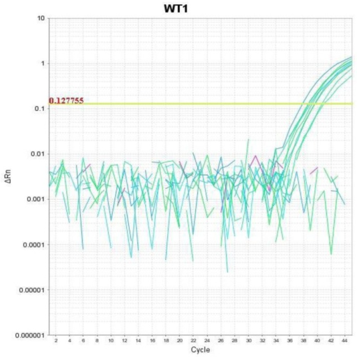 A case with positive expression of WT-1 gene by quantitative real-time PCR. Amplification Plot showing the log of the change in the fluorescence plotted versus cycle number (ΔRn vs. Cycle).