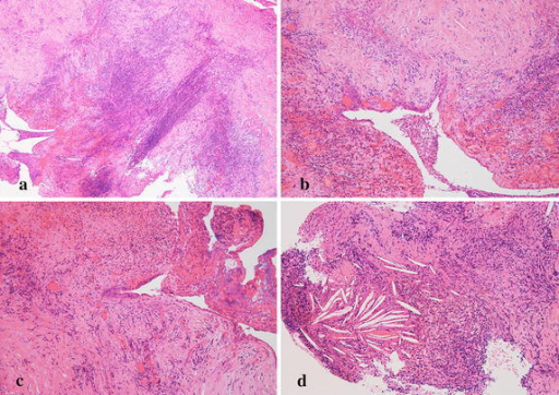 Case 2. a Photomicrograph showing massive inflammatory granulation, original magnification ×50. b, c Smooth transition from single squamous epithelium to stratified squamous epithelia, original magnification ×100. d Evident cholesterin clefts are seen, indicating repeated hemorrhage in the cyst, original magnification ×100. Hematoxylin and eosin stain