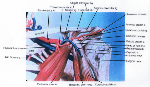 pectoral branches; lateral thoracic artery; first rib; clavicle; subclavian vein; subclavian artery; thoracoacromial artery; coracoclavicular ligament; conoid ligament; trapezoid ligament; acromioclavicular ligament; acromion process; acromial arterial branch; coracoid process; deltoid arterial branch; humerus; greater tubercle; cephalic vein; coracobrachialis muscle; biceps brachii muscle; pectoralis minor muscle