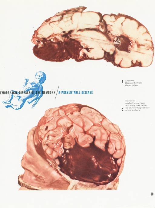<p>Advertisement from an issue of Scope magazine designed by an unknown graphic designer.  In center of the page is text imprinted over a figure of a newborn baby: &quot;[H]emorrhagic disease of the newborn / a preventable disease.&quot;  At the top and bottom of the page are images of a brain depicting cerebral hemorrhaging. Text on the right-hand side of the page reads: &quot;1. A section through the brain shown below., 2. Extensive cerebral hemorrhage in a newly born infant with hemorrhagic disease of the newborn.&quot;</p>