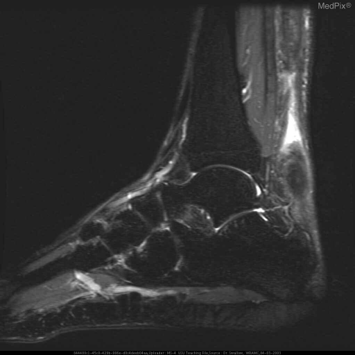 Sagittal STIR MR image shows high-signal-intensity edema/hemorrhage at the site of tear and extending proximally into the thickened Achilles tendon.