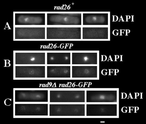 Cycling cells contain Rad26-GFP dots. Cultures were grown at 30°C in liquid, complete media to O.D. 0.5 before cell wall digestion, Triton X-100 extraction and methanol fixation (see Methods). A. rad26+ (TE696) B. rad26-GFP (TE1197) C. rad9Δrad26-GFP (TE1193) Bar = 5 μm