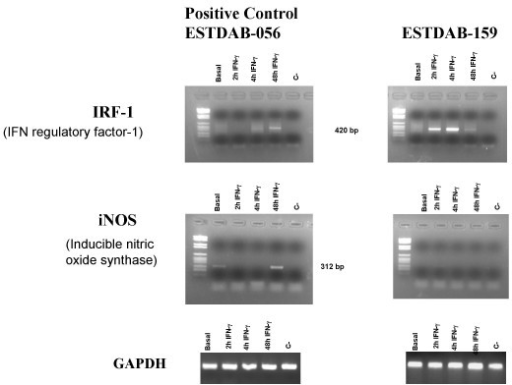 Time course effect of IFN-γ on the expression of IRF-1 and iNOS (A). Total RNAs were isolated from ESTDAB-159 cell line and form the control cell line ESTDAB-056 grown in the presence or absence of 800 U/ml IFN-γ for the indicated periods of time and analyzed for the relative levels of mRNA by RT-PCR.