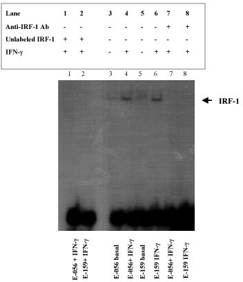 EMSA showing the binding of IRF-1 to a 32P labeled probe containing the IRF-1 consensus sequence. EMSA was performed with nuclear extracts obtained from untreated ESTDAB-056 (3) and ESTDAB-159 (5) melanoma cells or treated with 800 U/ml IFN-γ for 4 h (lanes 1, 4 and 7 corresponding to ESTDAB-056; and lanes 2, 6 and 8 corresponding to ESTDAB-159). A 50-fold molar excess of unlabeled IRF-1 probe was added to the binding reaction (lane 1, 2) to compete out the formation of a detectable complex. Anti-IRF-1 antibody was used to block IRF-1 binding to test the specificity of the interaction (lanes 7 and 8). Results shown are representative of at least three independent experiments.