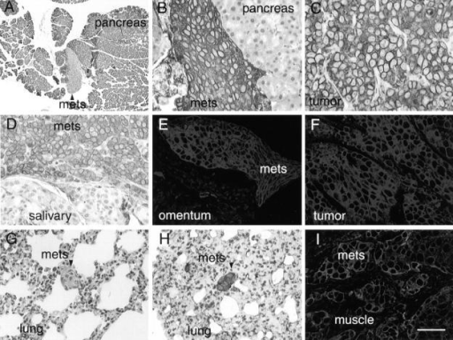 Histopathology of metastatic lesions in nude mice. 5-μm sections of the pancreas of mice injected with N-cad-17 cells were stained with either H&E (A) or cytokeratin antibodies, followed by DAB detection (B). Cytokeratin immunoreactivity of the N-cad-17 primary tumor (C) was compared with the pancreatic lesion produced by this tumor in B. Sections from the salivary gland of mice injected with N-cad-5 cells were stained with anticytokeratin antibodies, followed by DAB detection (D) and sections from the omentum (E) and primary tumor of N-cad-5–injected mice (F) were stained with FITC-conjugated cytokeratin antibodies. N-cad-8 metastatic lesions were detected in lung sections by H&E (G) and cytokeratin/DAB detection (H). N-cad-15 cells were found in the lumbar spinal muscle (I) using double fluorescent staining with antiactin, followed by secondary antibodies coupled to rhodamine (red) and FITC-conjugated anticytokeratin antibodies (green). Bar: (A) 100 μm; (G and H) 50 μm; (B, D, and E) 33 μm; (C, F, and I) 20 μm.