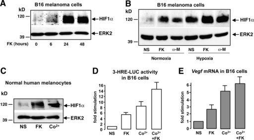 cAMP increases the expression of a functional HIF1α protein in melanocyte cells. (A) B16 cells were stimulated for 6, 24, and 48 h with forskolin (FK) and cell extracts were subjected to Western blot analysis to detect HIF1α protein levels. A control of the protein loading was performed by detecting ERK2. (B) The same experiment was performed by stimulating B16 cells either with forskolin (FK) or α-MSH (α-M) for 24 h. Cells were incubated, either in normal oxygen conditions (Normoxia, 20% O2) or maintained under hypoxia (1–2% O2). (C) A Western blot to analyze HIF1α protein expression was performed using extracts from normal human melanocytes. Cells were starved and treated with forskolin (FK) for 24 h or with cobalt (Co2+) to mimic hypoxia as a positive control. (D) B16 cells were transfected with the 3-HRE-LUC reporter construct and treated (or not) (NS) with forskolin (FK) for at least 36 h, with cobalt (Co2+) for 12 h, or with both (Co2+ + FK). Luciferase activity was normalized by the β-galactosidase activity and data are expressed in fold stimulation of the basal 3-HRE-LUC activity. Data are means ± SE of five experiments performed in triplicate. (E) Real-time quantitative PCR to detect Vegf mRNA levels on total RNA extracts from B16 cells treated as described in D.