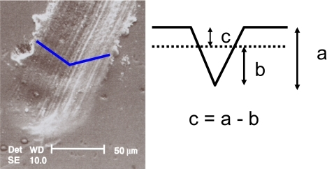 Showing an electron micrograph of a scratch in a tooth surface. If the depth of the initial scratch is measured (a), then re-measured on a subsequent appointment (b), the amount of tooth loss (c) over that time period and hence the current wear rate is determined