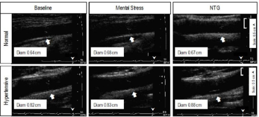 Representative examples of carotid artery diameter in a normal and a hypertensive subject in response to nigtroglycerin. Carotid artery diameter increased after mental stress as well as after nitroglycerin compared to baseline in the normal subject (top panels). In the hypertensive subject carotid artery diameter showed no change in response to mental stress but increased after administration of nitroglycerin (bottom panels). Carotid artery diameter was an average of 10 measurements at the onset of QRS complex.