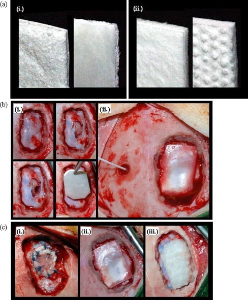 Surgical procedure. a Semisynthetic collagen matrices BCM (i) and DuraGen™ (ii) are shown. b illustrates the experimental approach: after creation of the osteoclastic defect, a dural defect and cortical lesion were created. After haemostasis, the dural defect was closed using an onlay graft (i). The intracranial pressure was monitored ((ii). c shows dural defects closed with periosteum (i), BCM (ii), and DuraGen™ (iii)