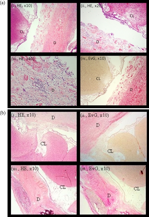 Histological analysis at 1 month postoperatively. a Histology of an animal randomized to duraplasty with BCM. Neither the cortical lesion (CL) nor the leptomeninges were markedly adherent to the device (D), which showed isolated lymphocytic infiltration. b Duraplasty with DuraGen™ (i, ii) or periosteum (iii, iv)