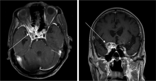 Mri Revealing A Mass In The Right Cavernous Sinus Exte Open I