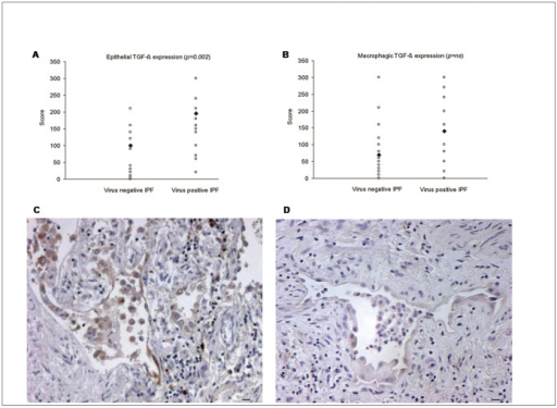 TGF-β expression in IPF lung tissue.A) Significantly increased TGF-β median score values of epithelial cells are seen in virus positive cases. B) TGF-β median score values of macrophages in virus positive and virus negative cases. Stronger and more extensive TGF-β immunostaining well seen in virus positive (C) than virus negative case (D). Bar scale: 5 µm.