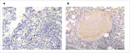 Immunohistochemistry for TGF-β in lung tissue of MHV-68 infected CD1 mice.Numerous metaplastic alveolar epithelial cells (arrows) are marked (A); positive macrophages (arrows) are seen around a remodelled artery (B). Bar scale: 40 µm.