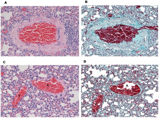 Vascular remodelling in lung tissue of MHV-68 infected CD1mice.Haematoxylin-Eosin (A, C) and Masson' trichrome (B, D) stained sections: marked arterial thickening is seen in a MHV-68 infected mouse (A and B, scale bars: 20 µm) in comparison to an uninfected mouse (C and D). Bar scale: 20 µm. A: small artery; V: venule.
