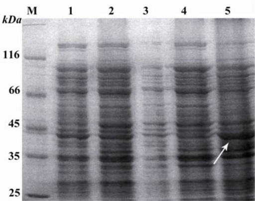 thesis on molecular markers A molecular weight marker such as a known protein or standard that produces bands of known size, migrates to the resolving gel, and is.