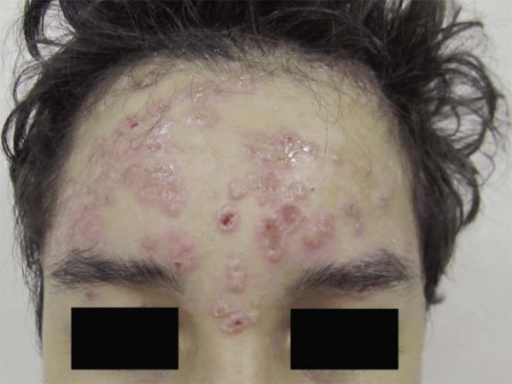 Linear IgA dermatosis. Erosions and peripherally-disposed vesicles over a reddishbackground on the forehead and glabella