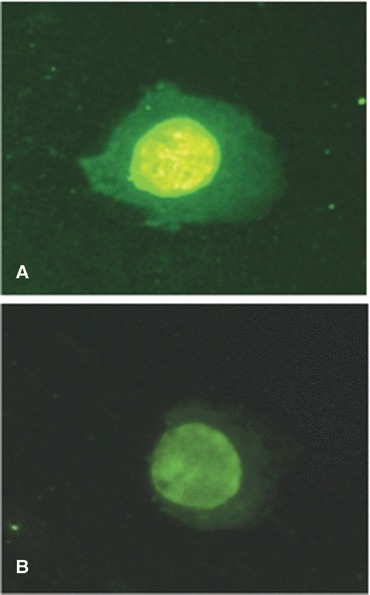Indirect immunofluorescence microscopy of acetylated histone H4 in NS-SV-AC cells treated with or without TNF-α. The expression of acetylated histone H4 was specifically observed in the nuclei of NS-SV-AC cells (A), however, reduced expression of acetylated histone H4 was evident in NS-SV-AC cells treated with TNF-α for 12 hrs (B).