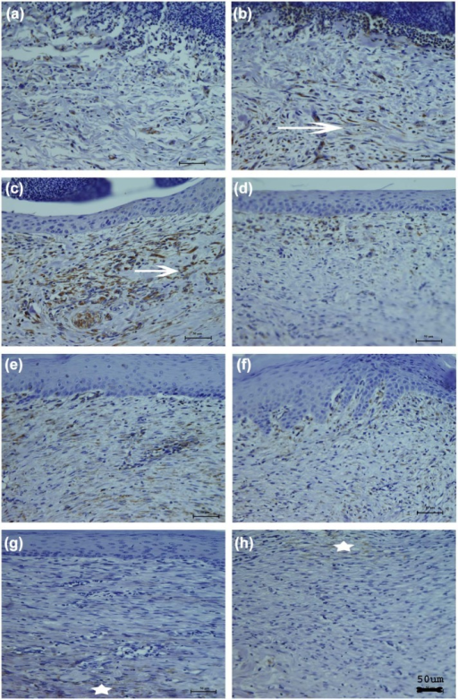 Vimentin immuno staining of CDS-grafted wound (a,c,e and g) and SIS-grafted wound (b,d, f and h) on 3rd, 7th, 14th and 30th day. On third day (a and b), both CDS and SIS showed heterogeneous distribution of vimentin throughout the wound area and they appeared like elongated spindles (star). On 7th (c and d) and 14th day (e and f), the vimentin concentrated below the neo-epidermis showed further elongation and scattering. On 30th day (g and h), vimentin deposition was sparse, faint, thin and assumed the shape of an 'elongated wavy thread' (arrow). Please see Figure 11(d) for quantitative data.CDS: cholecyst-derived scaffold; SIS: small intestinal submucosa.